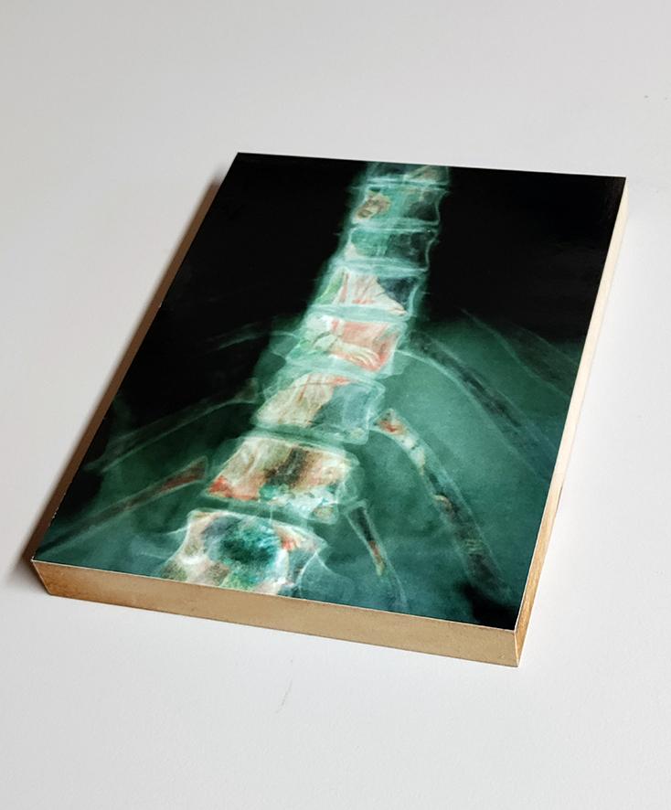 EVA, Ausstellungsstück Schubsengel von 2009